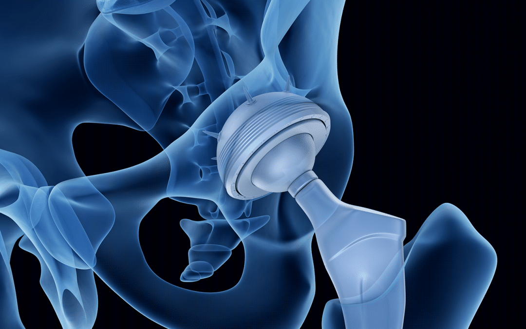 The Advancement of Hip Replacement Surgery Through my 30-Year-Medical-Career